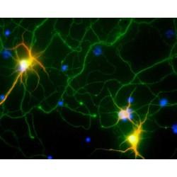 Interactions entre les virus et le cerveau