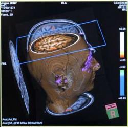 L'imagerie cérébrale